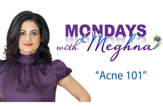 Mondays With Meghna – Acne ( Season 1 – Episode 4)