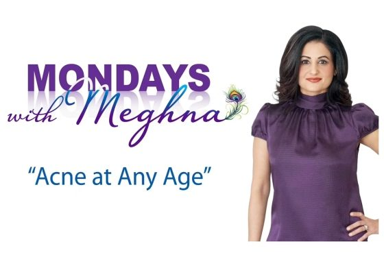 Mondays with Meghna – Acne at Any Age (Season 1 – Episode 6)
